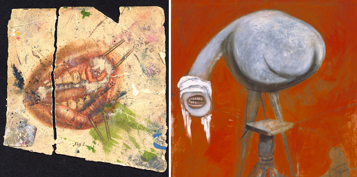 "Left: Image from ""Atlas-Manuel des maladies de la bouche,"" first edition 1894. Right: Three Studies for Figures at the Base of a Crucifixion, central panel detail, Francis Bacon, 1944."